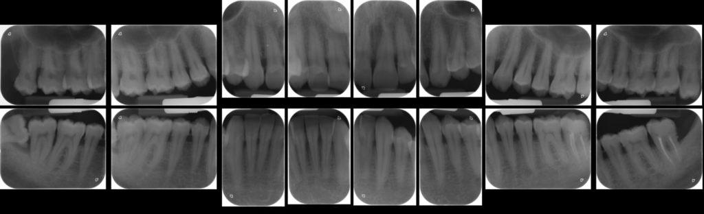 visita endorale studio dentistico dominici eur roma