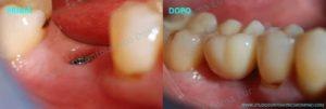 Impianti dentali Roma Impianti dentali singoli