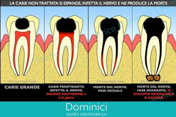 ortodonzia mobile prima