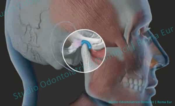gnatologia mandibola