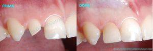impianti dentali roma Protesi dentali impianto singolo