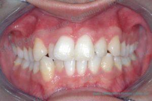 Invisalign ortodonzia invisibile