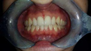 ortodonzia invisibile allineatori dentali dopo