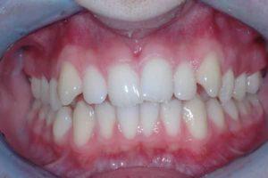allineatori dentali e ortodonzia invisibile