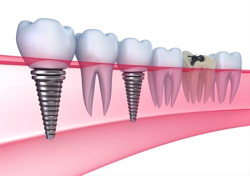 impianti dentali roma offerta