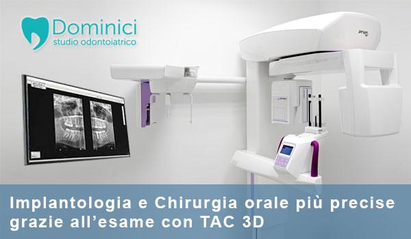 tac 3d studio dentistico roma studio odontoiatrico dominici eur