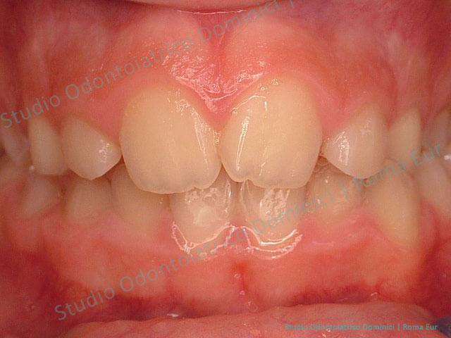 apparecchio denti mobile